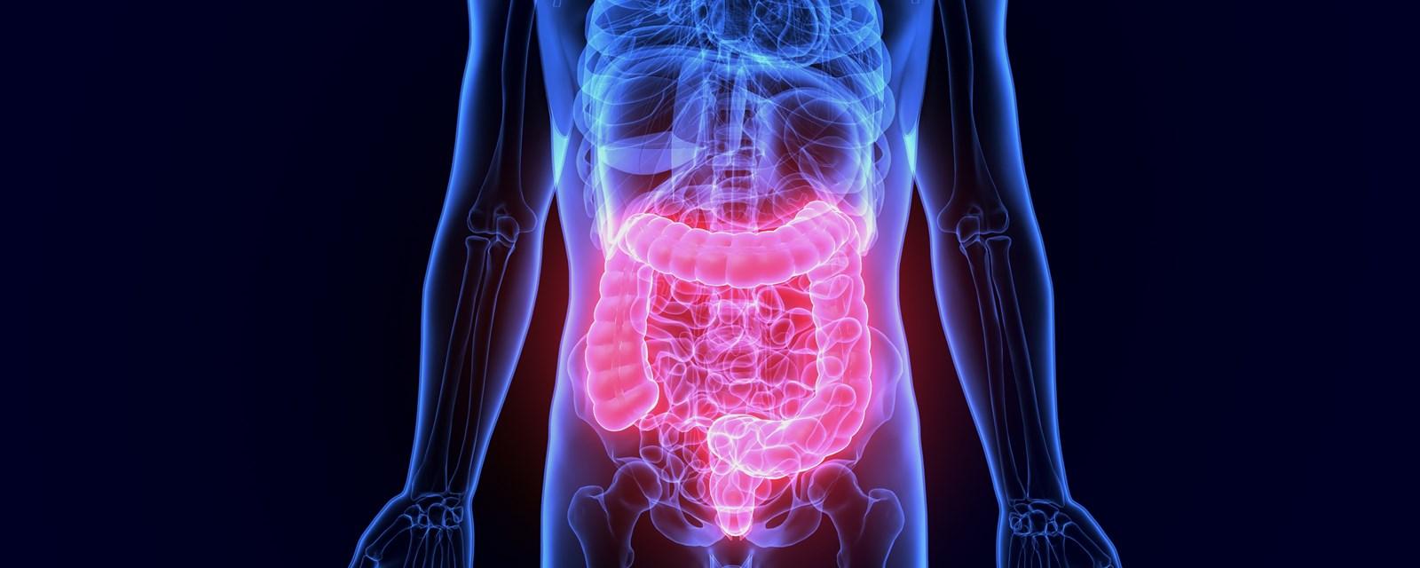 Ilustração em 3D de um corpo humano em raio X, com destaque para o intestino grosso.
